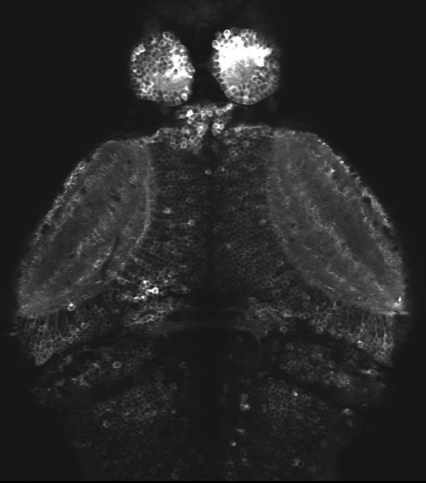 Two Photon Microscopy