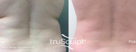 truSculpt_Body_11.jpg