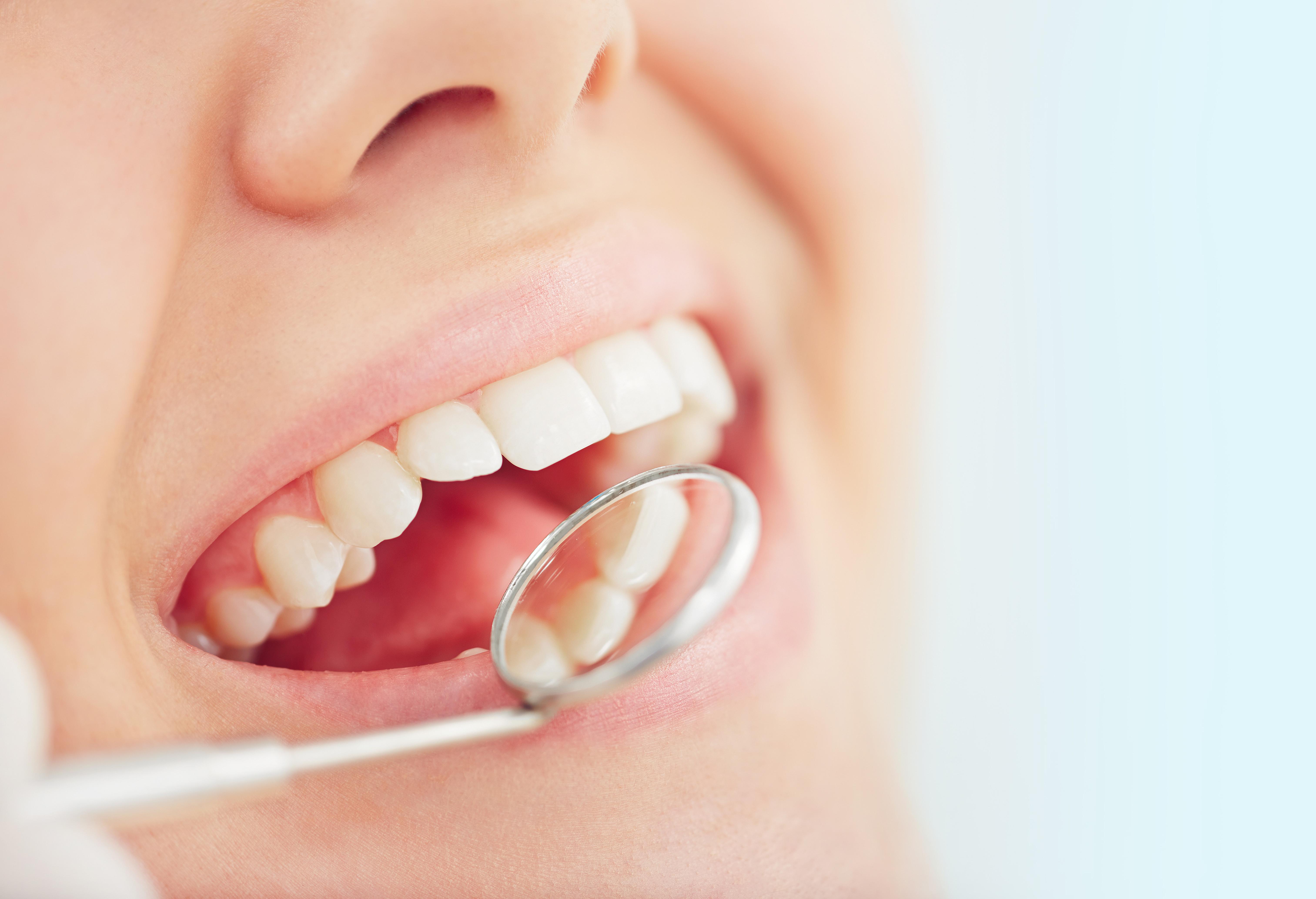 歯科検査・クリーニング