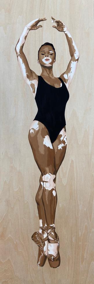 Vitiligo by Natalie Higginbotham