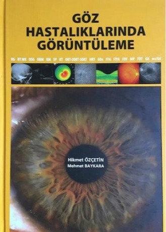 Göz Hastalıklarında Görüntüleme