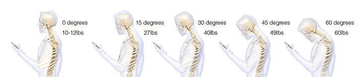 smartphones and electronics create neck pain and stress due to increase stress