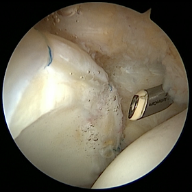Hip scope labral repair picture.png