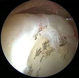 Hip scope labral tear 2 picture.png