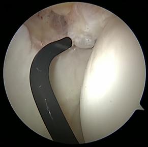 Hip scope ligamentum teres debridement p