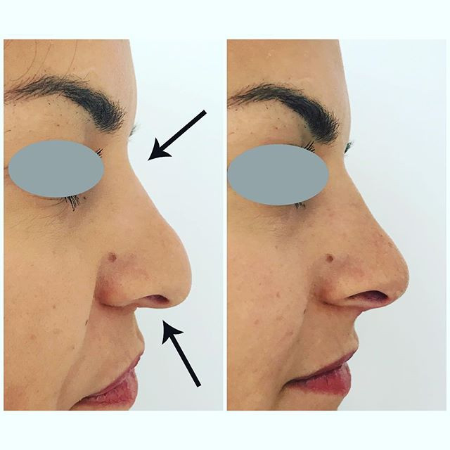 Fillers kring näsa