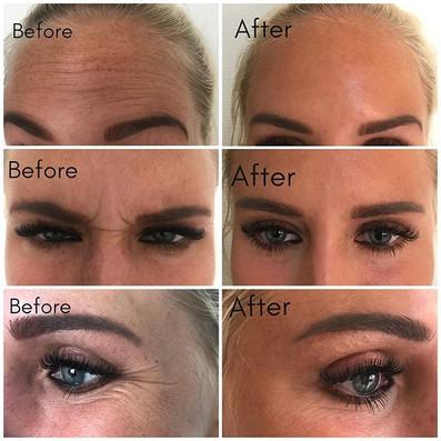 Botox i panna och kring ögon