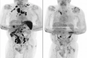 Homem teve redução de câncer AVANÇADO após contrair Covid-19