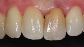 ¿Tienes un diente oscuro?