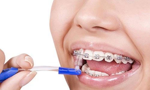 ortodoncista providencia