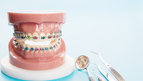 Cuidados que debes tener cuando tienes ortodoncia.