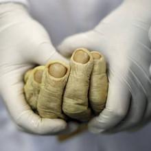 Clasificaciones de los Fenómenos Cadavéricos