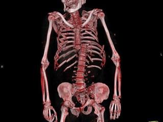 La imagen radiológica 'post mortem'