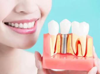 Dantų implantai. Kodėl tai svarbu?