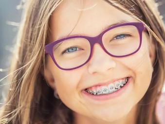 Kaip susidoroti su dantų jautrumu nešiojant dantų kabes?