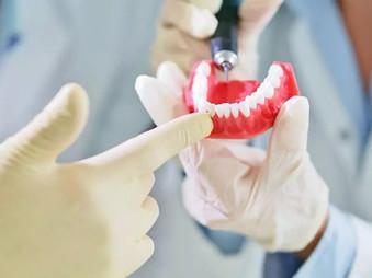 Dantų protezai ir protezavimas. Kada taikytina?