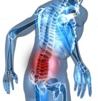 Sacroiliac Joint pain ?
