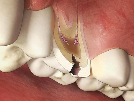 Evita la caries y la enfermedad periodontal
