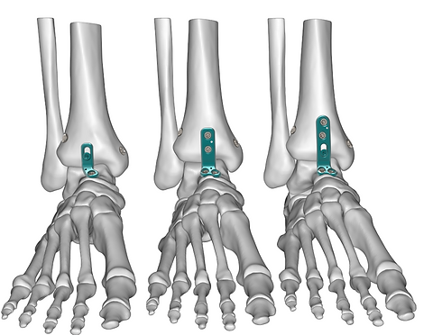 Mini Ankle Arthrodesis