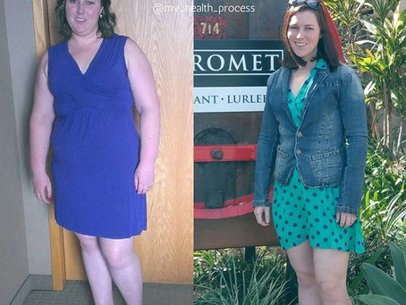 Why I Didn't Undergo Weight Loss Surgery