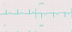 EKG crop and color TL.jpg