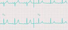 EKG crop and color BR.jpg