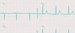 EKG crop and color TR.jpg