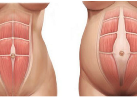 Diastasis Recti Abdominis - What the hell has happened to my stomach?!