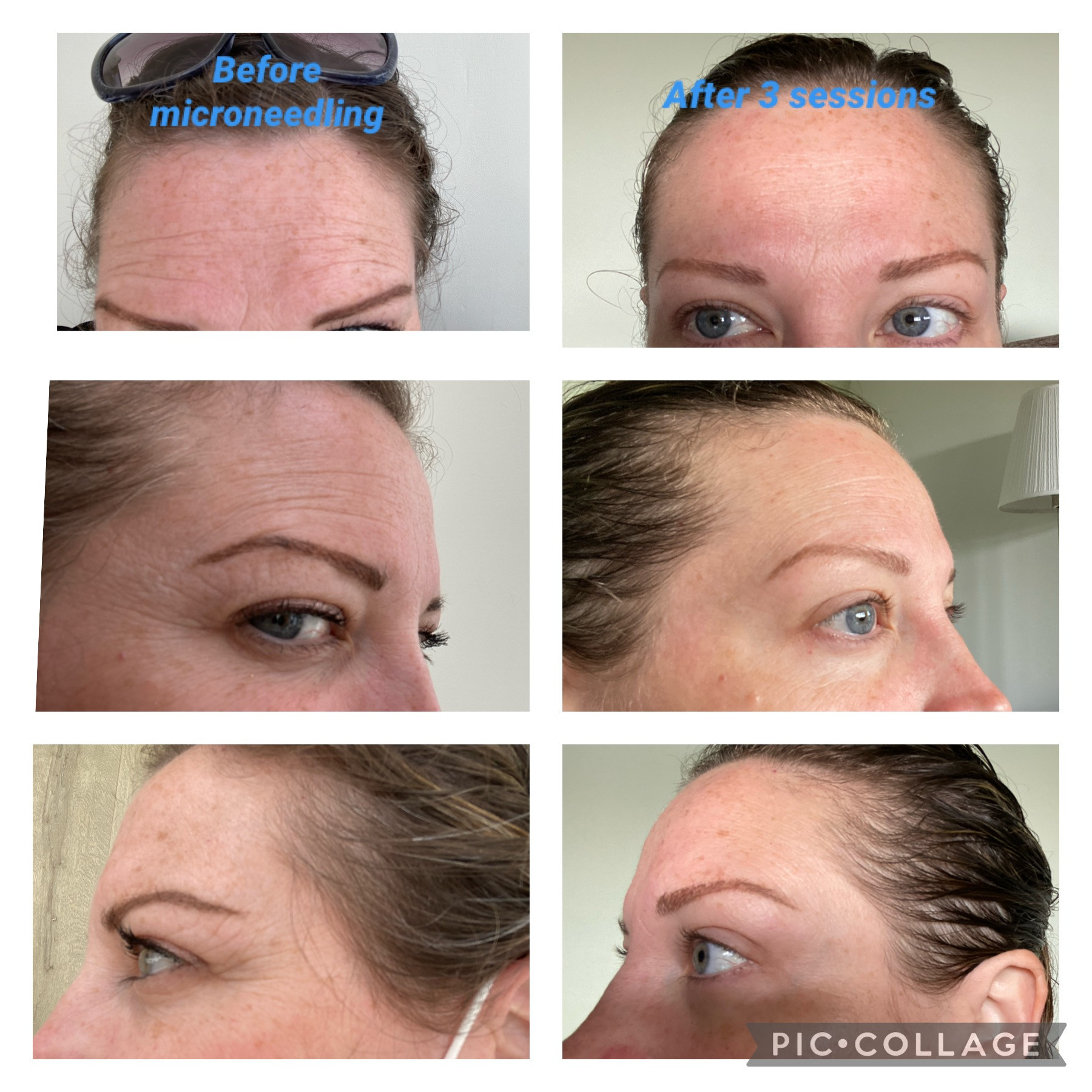 Microneedling facial (CIT)