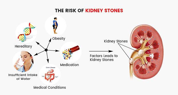 the-risk-of-kidney-stones.jpg