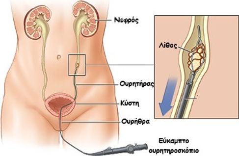 Laser lithotripsy(GR).jpg