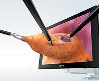Laparoscopic surgery.jpg
