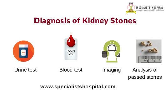 treatment-for-kidney-stone-in-ernakulam-
