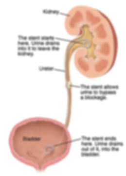 ureteral-stents.jpg