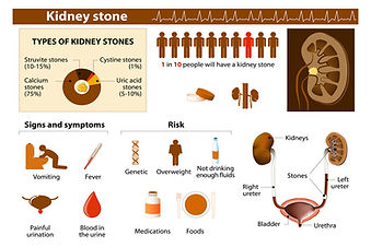 symptoms-of-kidney-stones (1).jpg