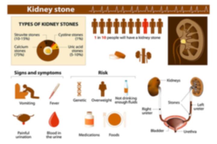 symptoms-of-kidney-stones (1).jpg