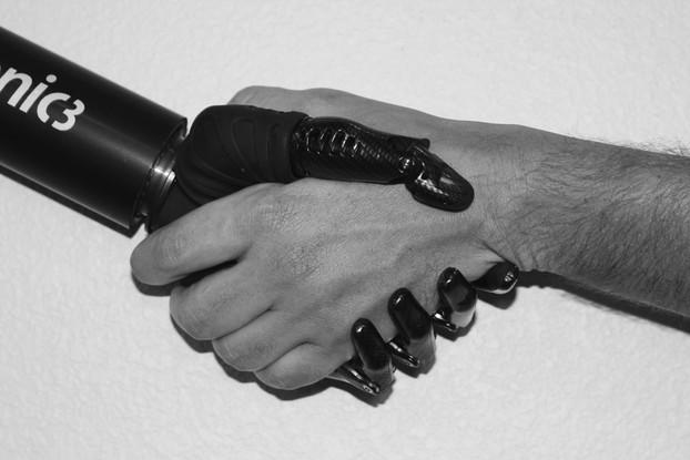 microprocessor hand bionic