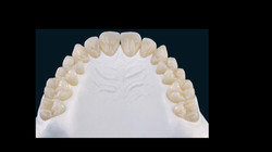 zirkon dental lab