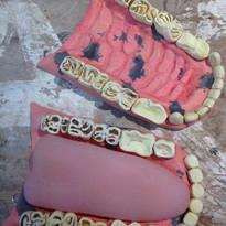 Teeth and Tongue