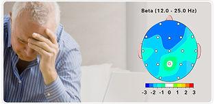 Dementia Button.jpg