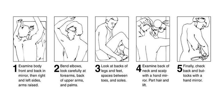 How to perform a monthly skin exam.