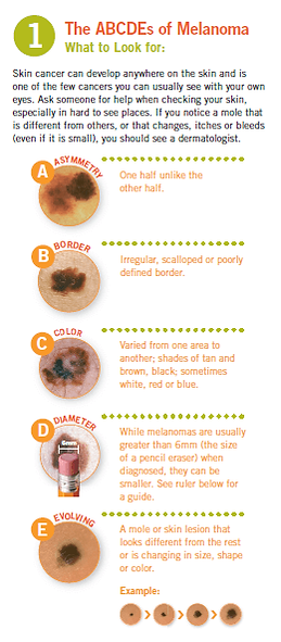 The ABCDEs of Melanoma.