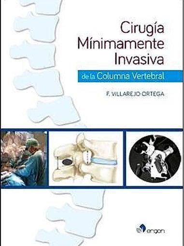 Cirugía mínimamente invasiva de la columna vertebral
