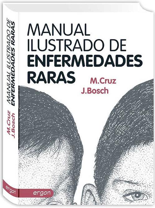 Manual ilustrado de enfermedades raras
