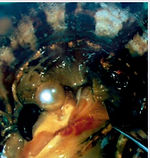 Introducción del núcleo en la ostra para crar una perla cultivada