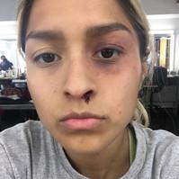 Lightly Bruised Eye