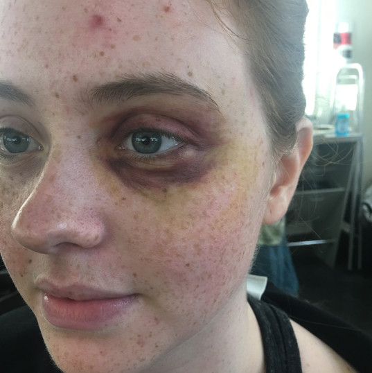 Bruised Eye