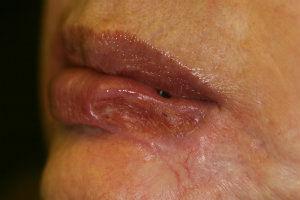 lip-lesion-pre-laser-treatment.jpg.jpeg