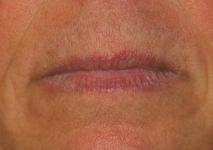 liplase-laser-post-treatment-2.jpg.jpeg
