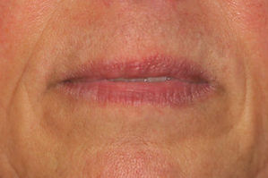 liplase-laser-pre-treatment-2.jpg.jpeg
